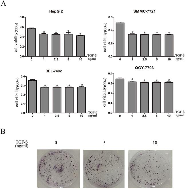 TGF-β1 inhibits in vitro growth of HCC cells.