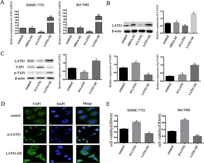TGF-β1 inhibits the growth of HCC cells by regulating the Hippo signaling pathway.