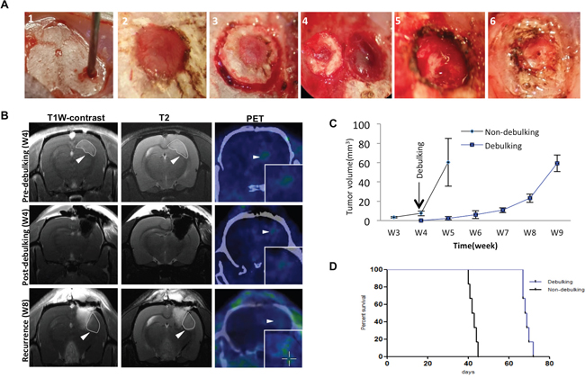 Survival in rats implanted with GBM is enhanced with surgical debulking.
