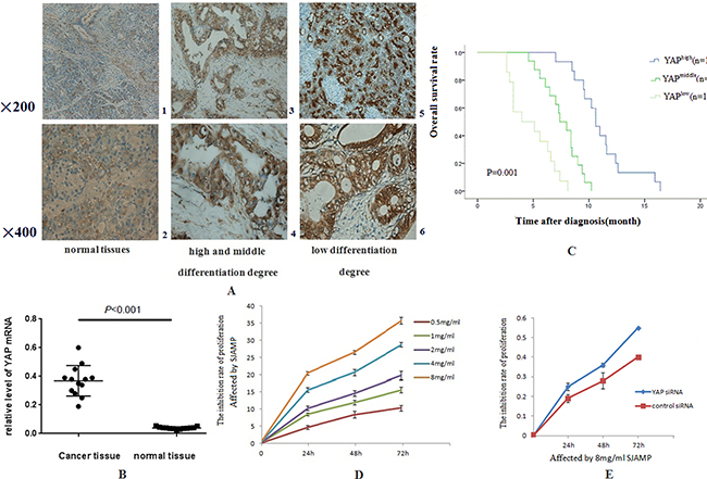 The expressions of YAP in pancreatic cancer tissues are stronger than in normal pancreatic tissues and SJAMP Inhibits the proliferation of SW1990.