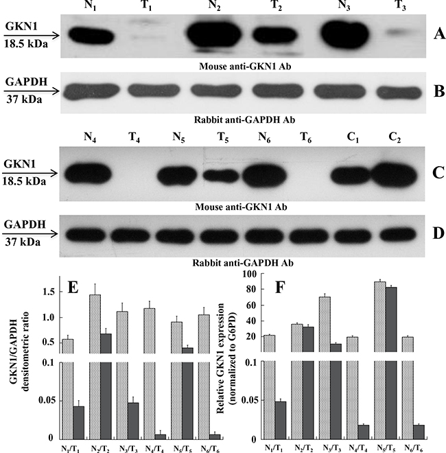 Expression levels of GKN1 in human gastric tissues.