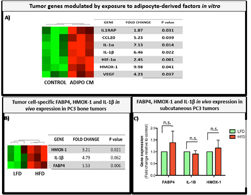 FABP4, IL-1β, and HMOX-1 are expressed in tumor cells exposed to adipocyte-derived factors in vitro and in bone tumors in vivo.