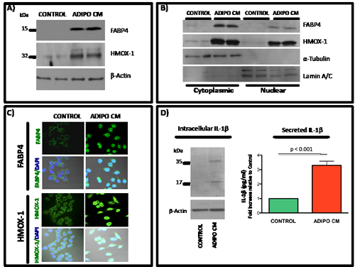 Induced expression of FABP4, HMOX-1 and IL-1β and nuclear translocation of FABP4 and HMOX-1 upon exposure of PC3 cells to Adipo CM.