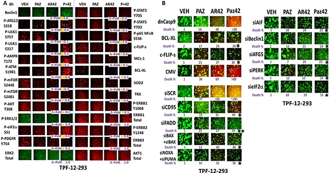 The regulation of protein phosphorylation by [pazopanib + AR42] in mutant B-RAF melanoma cells.