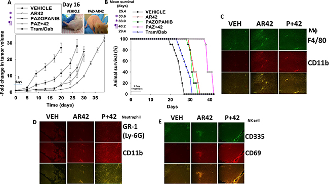 [Pazopanib + AR42] suppresses melanoma tumor growth in vivo.