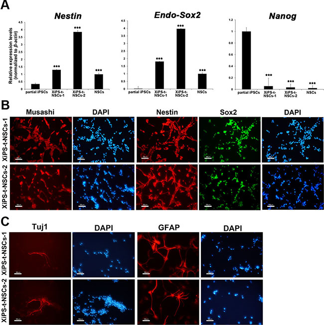 Characterization of in vivo NSCs from teratomas derived from partially reprogrammed cells.