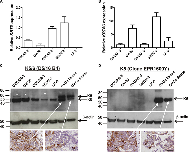 KRT5, KRT6C mRNA, K5/6 and K5 expression in ovarian cancer cell lines.