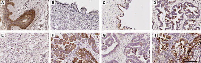 K5/6 expression in human ovarian tissues.