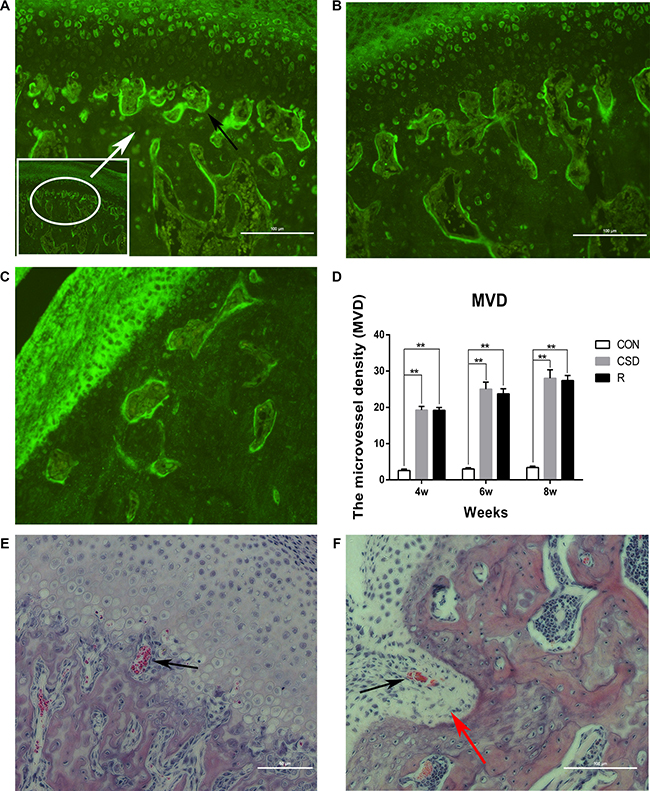 Angiogenesis in the TMJ of the CON, CSD and Recovery group.