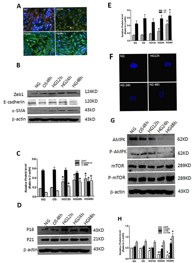 Effect of HG on senescence, EMT and AMPK/mTOR signaling in PTC.