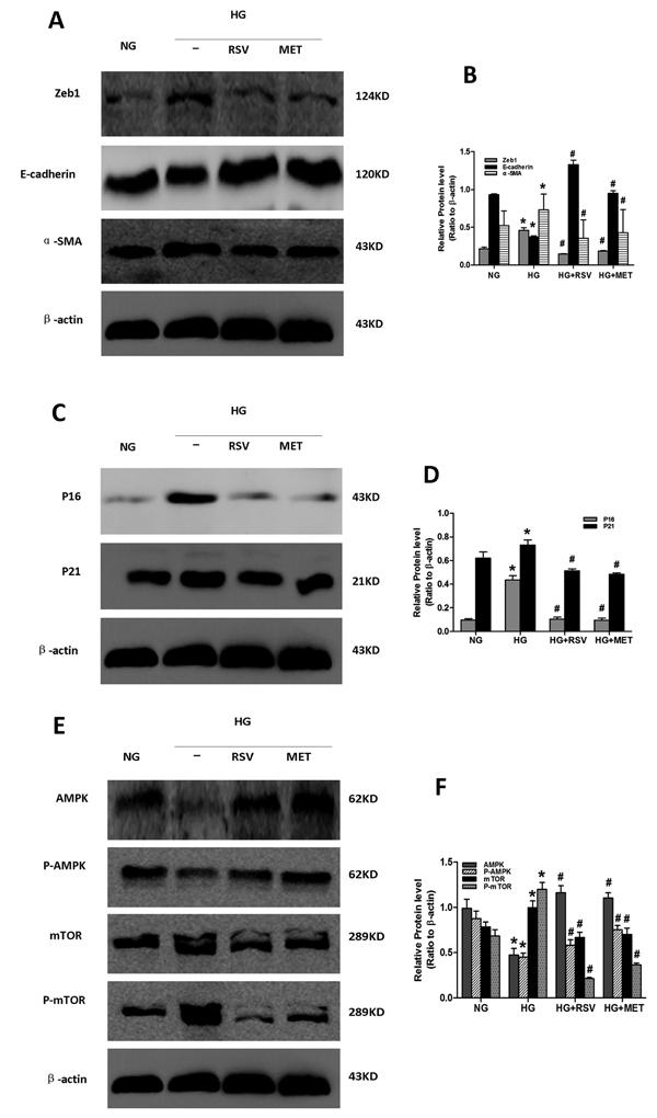 Effect of resveratrol and metformin on HG-induced senescence, EMT and AMPK/mTOR signaling.