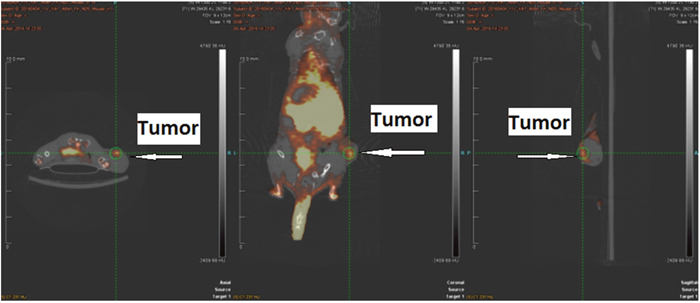[11C]AMT PET imaging in HeLa Cervical tumor model with IFN-γ treatment.
