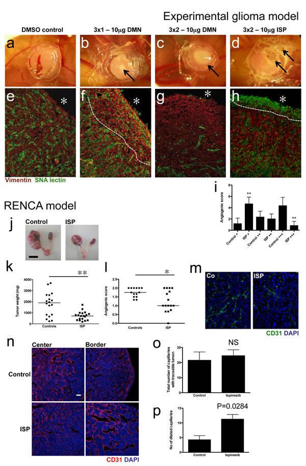 Eg5 inhibition reduces tumor angiogenesis in experimental tumor models.