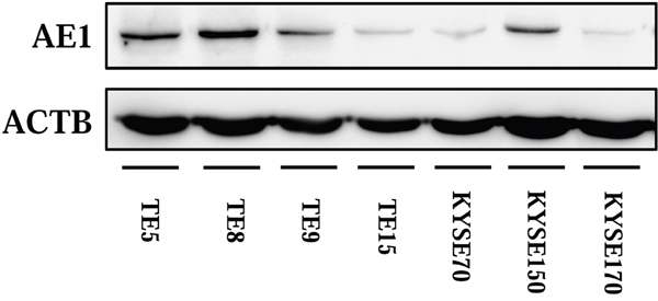 Expression of AE1 in ESCC cells.