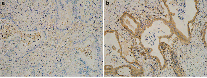 Representative photographs of the immunohistochemistry analysis of DPC4 in pancreatic ductal adenocarcinoma.