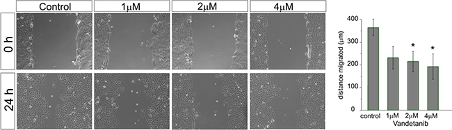 Vandetanib inhibits MB cell migration already at low concentrations.