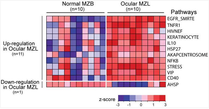 Gene expression signature in ocular MZL.