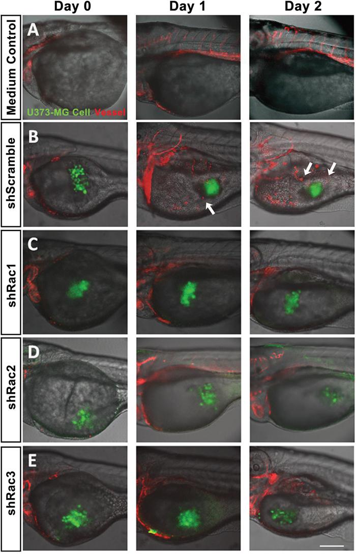 In vivo zebrafish xenotransplantation model of U373-MG tumorsphere cells with shRacs.
