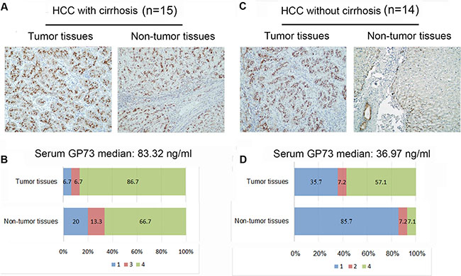 Immunoreactivity of GP73 in liver tissues from HCC patients.