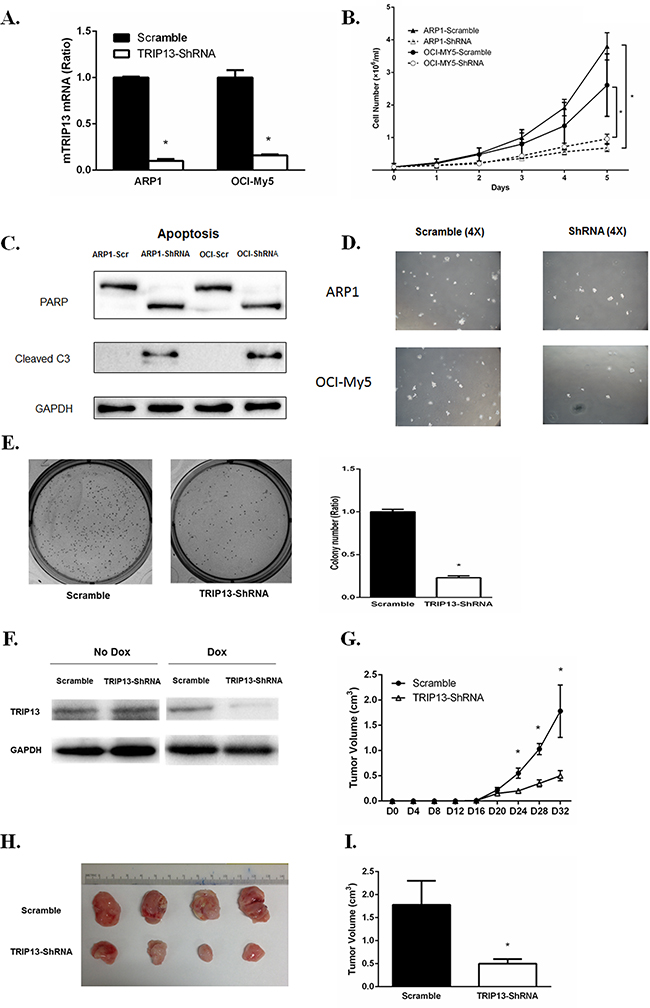 TRIP13 knockdown inhibits myeloma cell growth, induces apoptosis and lowers tumor burden in vivo.