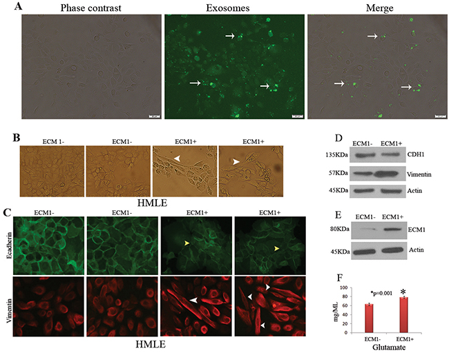 Role of ECM1+ exosomes on cellular transformation.
