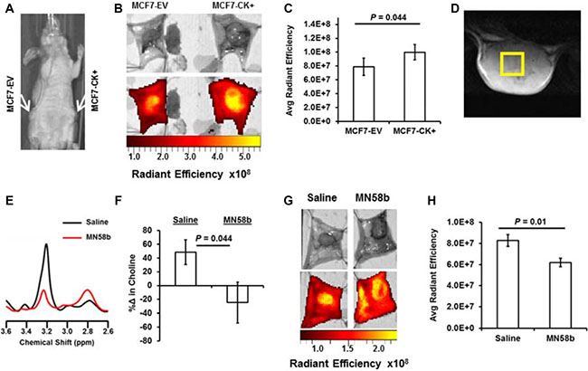 NIRF imaging for JAS239 accumulation can detect genetic overexpression and pharmacologic inhibition of ChoKα.