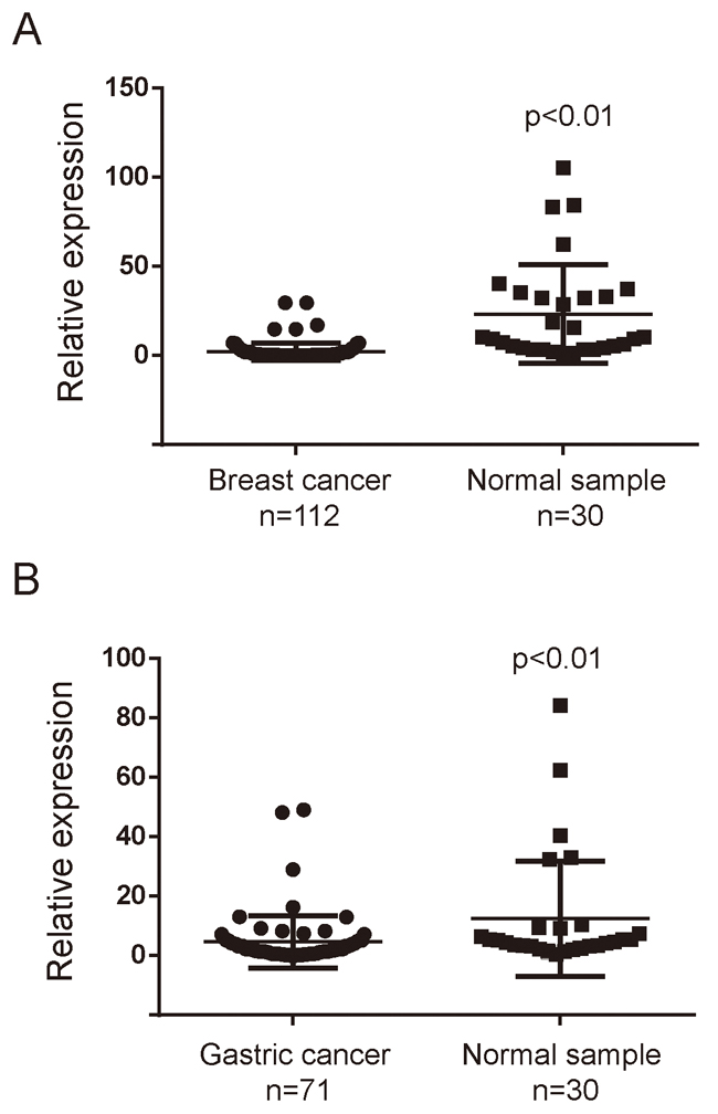 MiR-3622b-5p is down-regulated in cancer tissues.