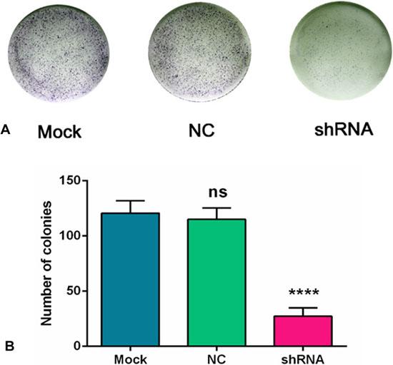 AEG-1-shRNA inhibited the proliferation of H460 cells.