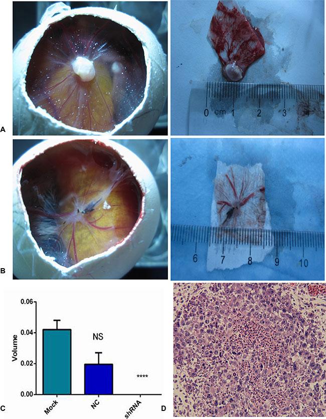 AEG-1-shRNA inhibited the tumorigenic and angiogenic ability of the H460 cells.