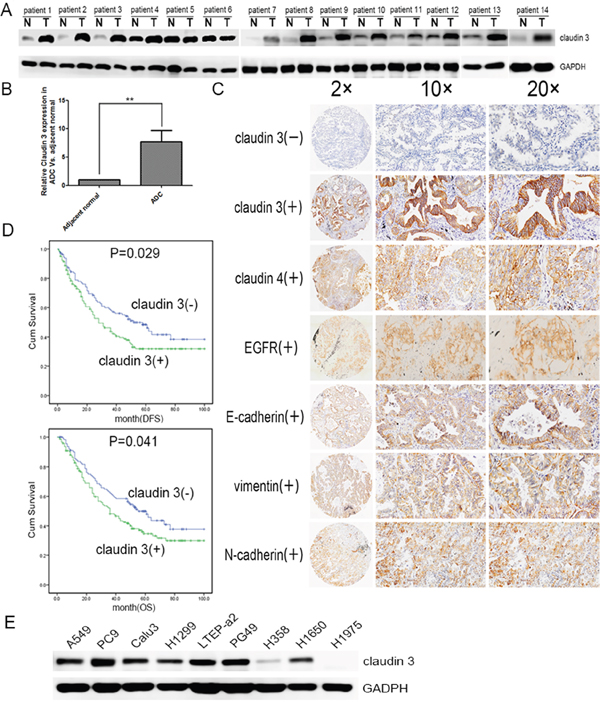 CLDN3 expression in lung cancer patients and cell lines.