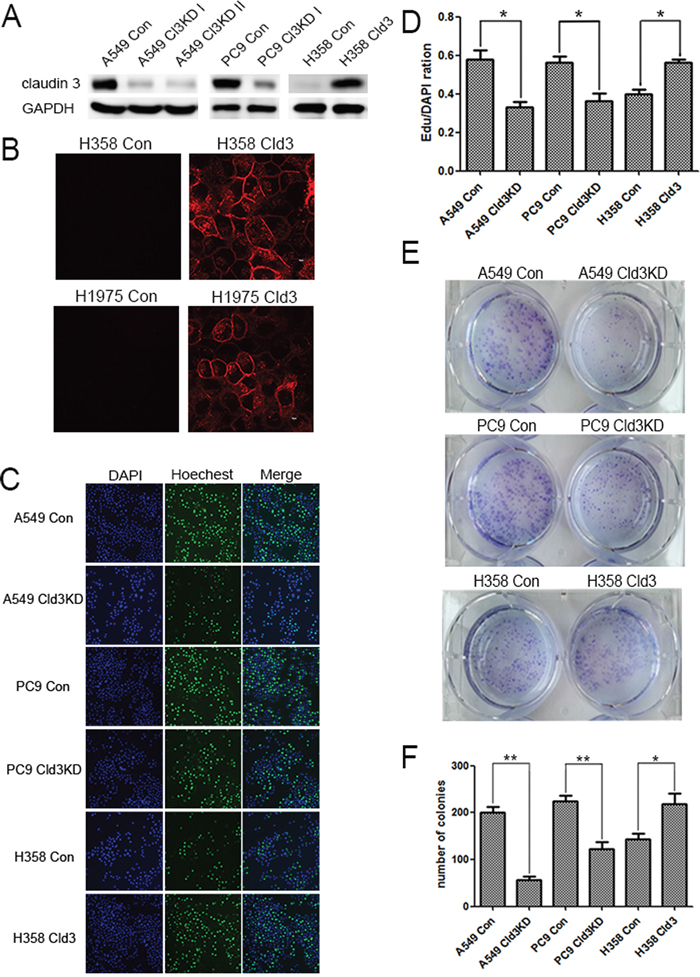 CLDN3 expression alterations affect the proliferation and clonality of ADC cells.