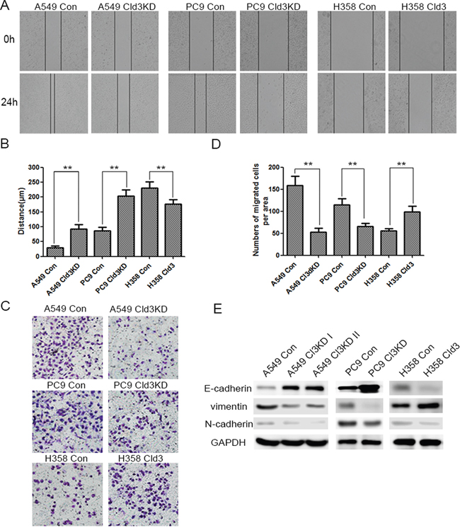 CLDN3 expression alterations affect the migration of ADC cells.