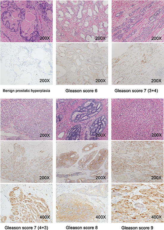Prostate tissue sections were obtained from benign prostatic hyperplasia patients (n = 31) and prostate cancer patients with a Gleason score of 6 to 9 (n = 129), and representative immunohistochemistry images are shown.
