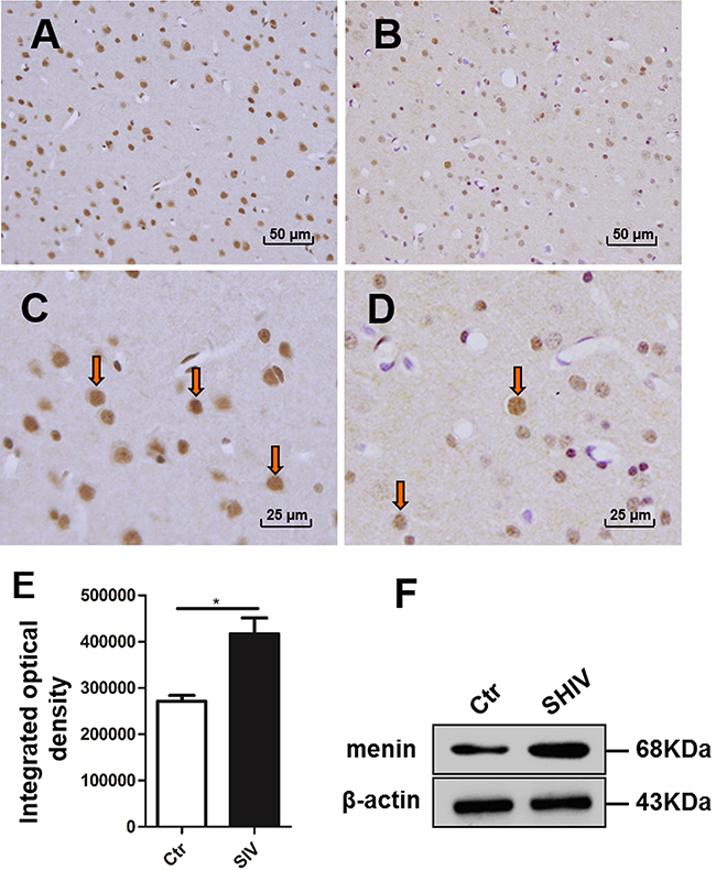 Menin were increased in the frontal cortex of SIV-infected macaques.