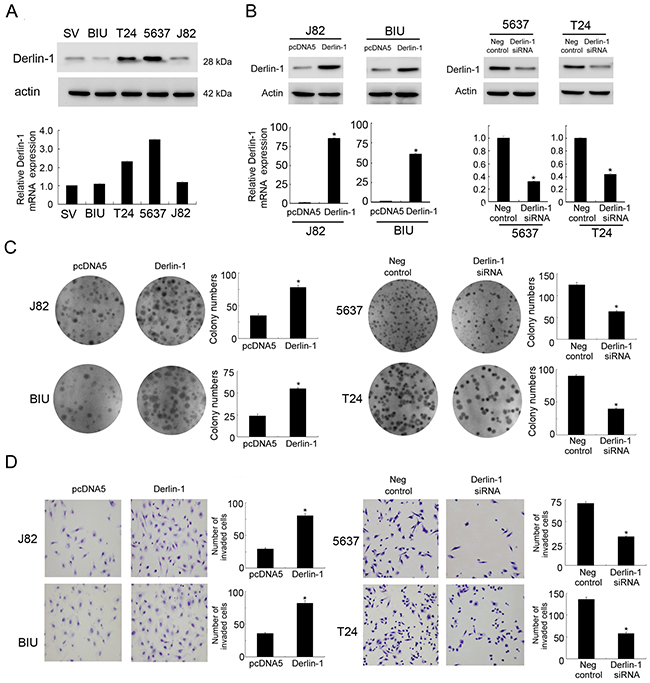 Derlin-1 overexpression in bladder cancer cell lines promotes proliferation and invasion.