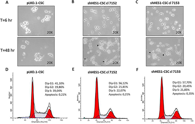 Targeting Hes1 expression induces morphological changes and negatively affects the cell cycle profile in shHes1-CSC.