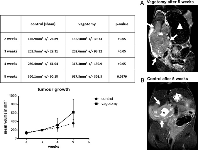 Vagotomy led to significantly increased tumor growth.