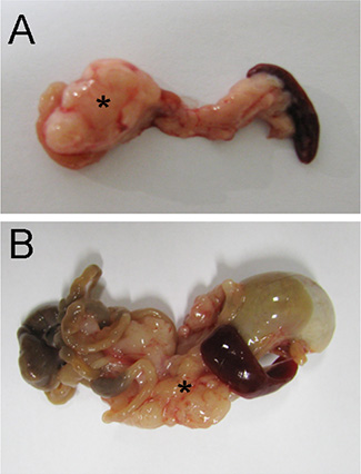 Vagotomy changed tumor morphology.