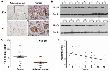 Increased 14-3-3θ expression was detected in breast cancer tissues by IHC and western blot.