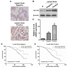 The expression of 14-3-3θ was analyzed according to lymph node metastasis status.