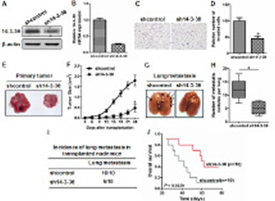Knockdown of 14-3-3θ expression inhibited metastasis of breast cancer cells in vitro and in vivo.