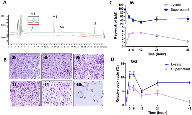 RV metabolic pattern in HBC T24 cells.