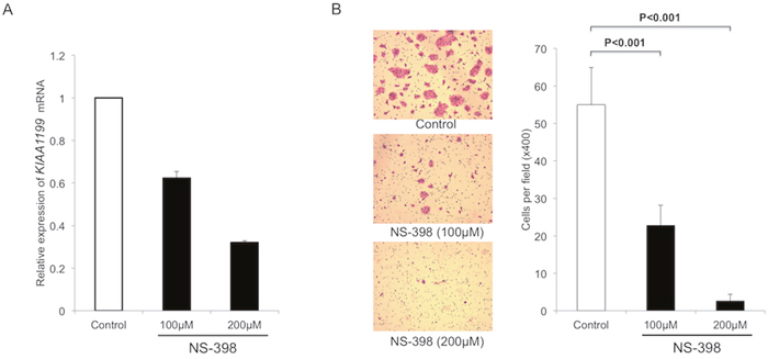 NS-398 decrease KIAA1199 expression and migration in PDAC cells.