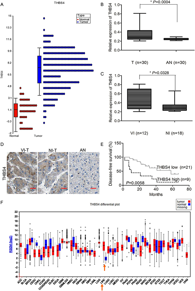 THBS4 is overexpressed in HCC and associated with vascular invasion and survival.