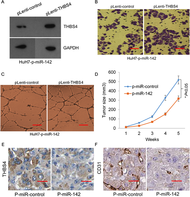 miR-142 inhibits tumor formation of HCC cells through targeting THBS4.