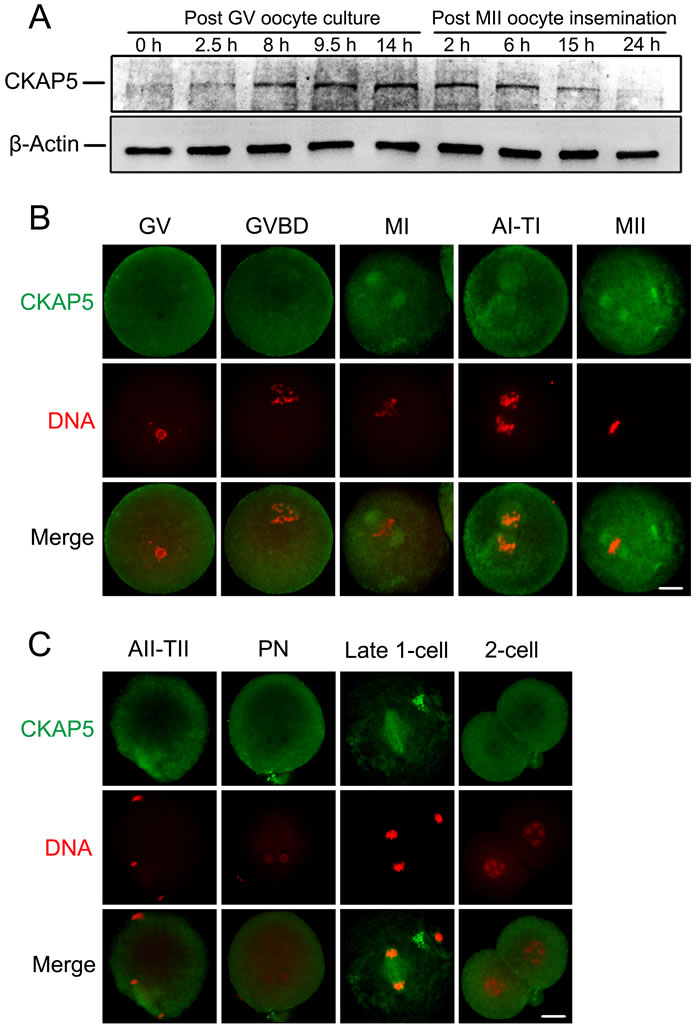 Expression and localization of CKAP5 during oocyte meiotic maturation and early embryonic development.