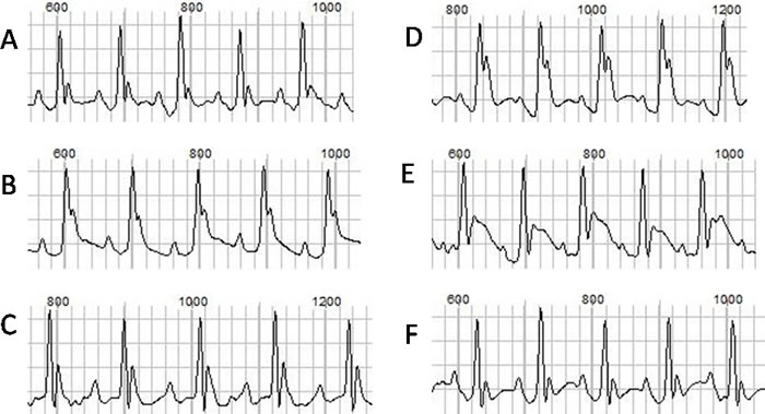 The ECGs at baseline and after drug injection.