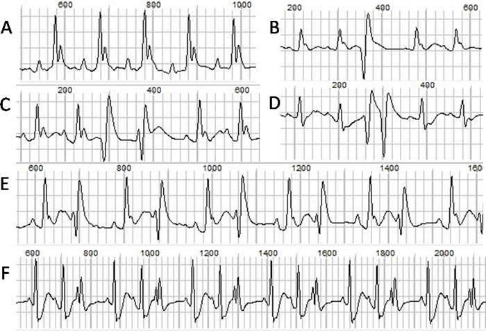 The normal ECG and different types of ventricular arrhythmias.