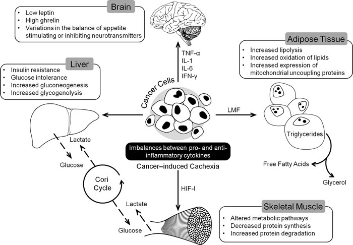Tumor induced changes in different organs leading to the development of CACS.