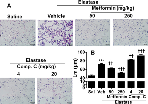 AMPK prophylactically attenuated elastase-induced airspace enlargement in mice.